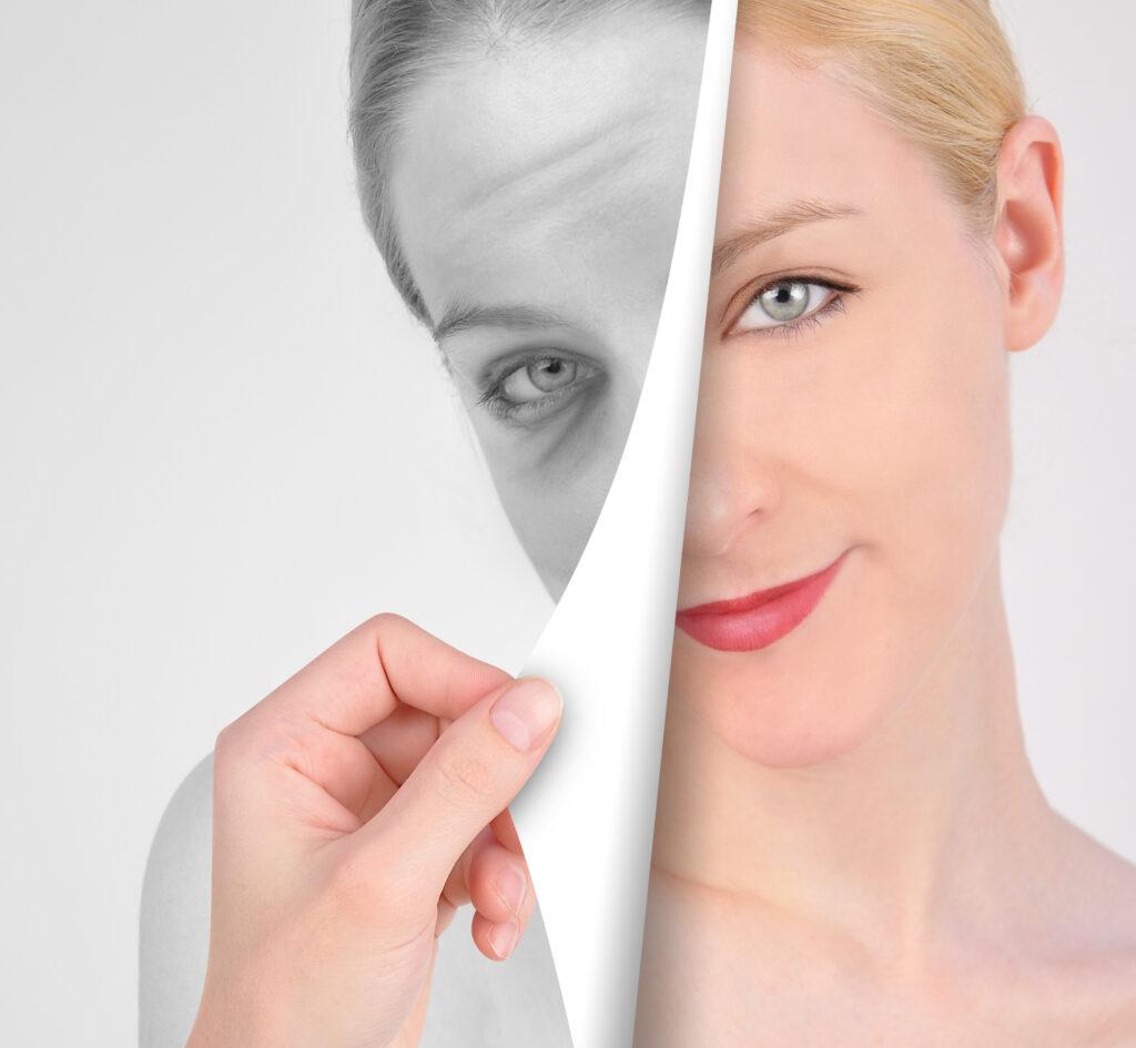 Toronto plastic surgeon, Toronto skin, Best skin care, IPL, lasers