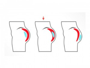 Toronto buttock augmentation, buttock augmentation in Toronto, buttock augmentation Toronto, butt augmentation Toronto, cost