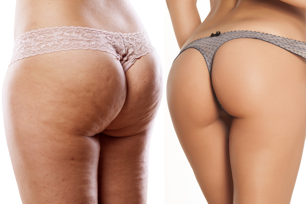 Butt lift, Brazilian Butt Lift, Butt implant, Butt augmentation, buttock augmentation