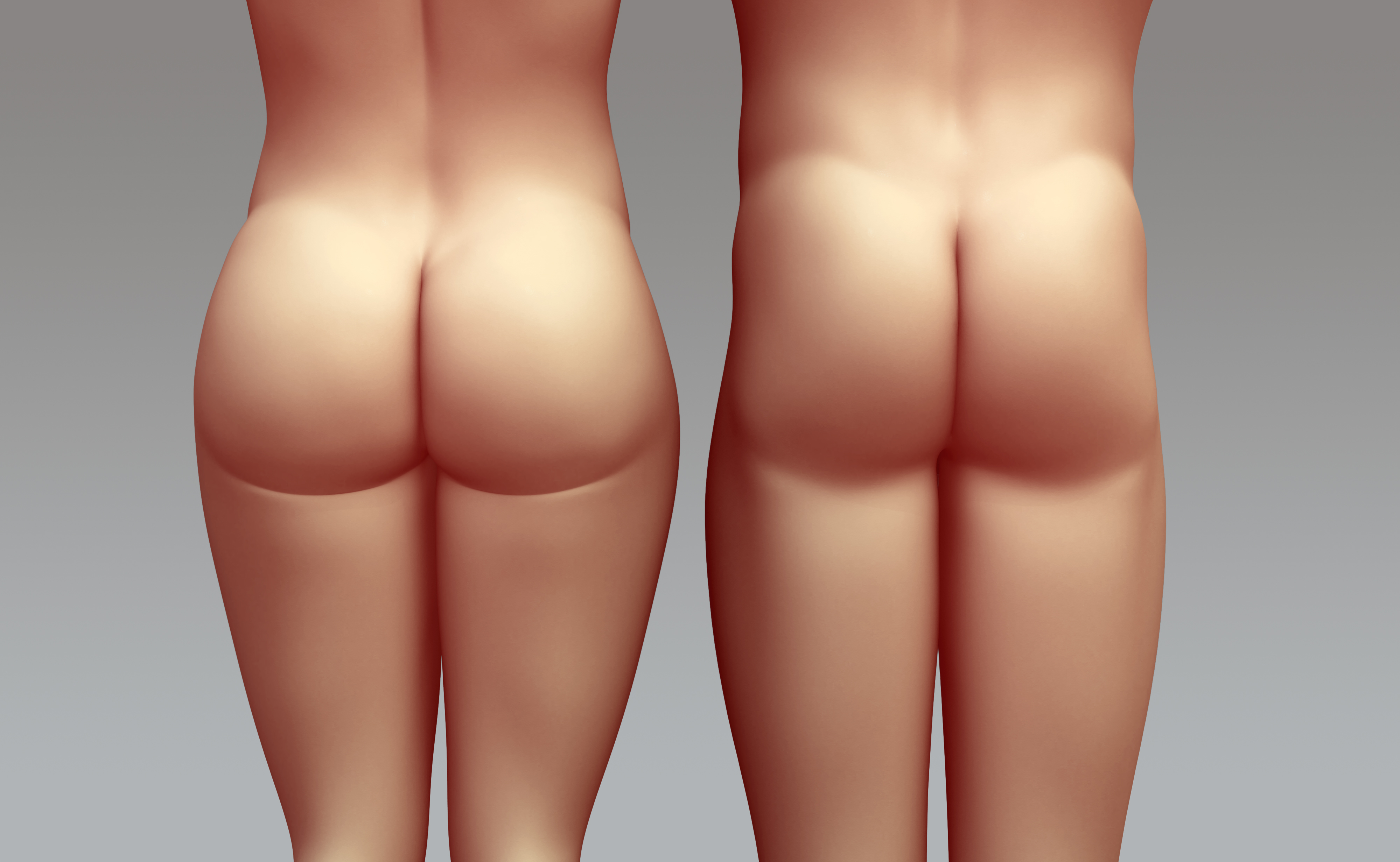 Buttock augmentation, Butt lift, Toronto buttock augmentation, buttock implants Toronto