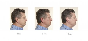 plastic surgery for men, plastic surgery Toronto men, Toronto Men plastic surgery, filler men Toronto, Botox Men Toronto, plastic surgery men Toronto