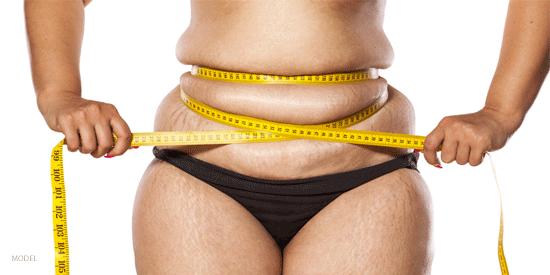http://www.visageclinic.com/cosmetic-surgery/weight-loss-surgery.cfm