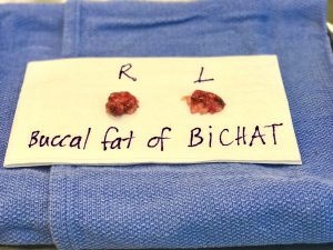 buccal fat pad removal, buccal fat pad, Toronto buccal fat pad, buccal fat pad Toronto, Bichectomy, Bichatectomy