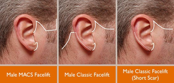Graphic of male facelift incisions