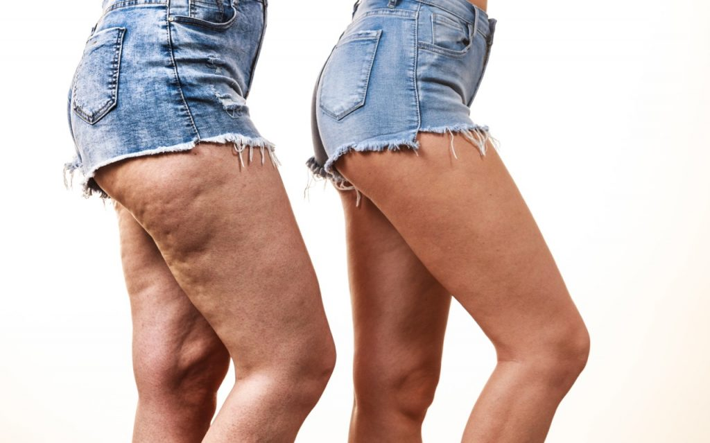 Cellulite treatments and alternatives to Cellfina in Toronto, ON.