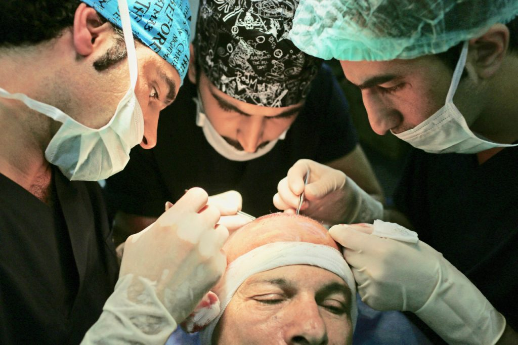 Hair restoration Toronto, Toronto hair restoration, Toronto hair transplant, Hair transplant toronto, hair thinning, Toronto plastic surgeon