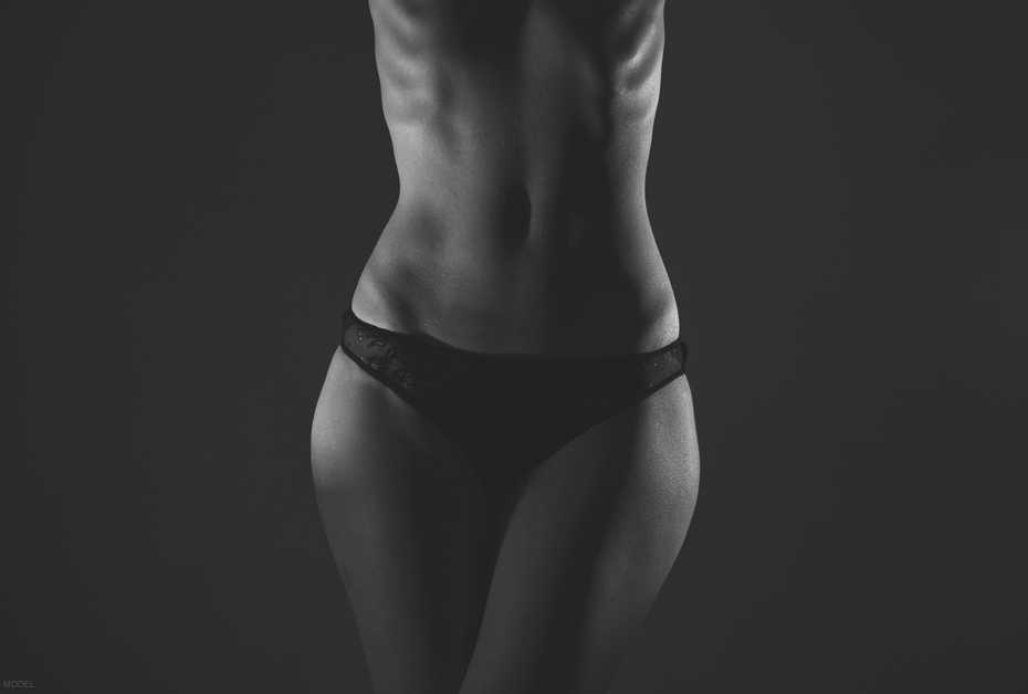 When a Tummy Tuck is the right choice. Tummy Tuck vs. Liposuction vs. Mommy Makeover.